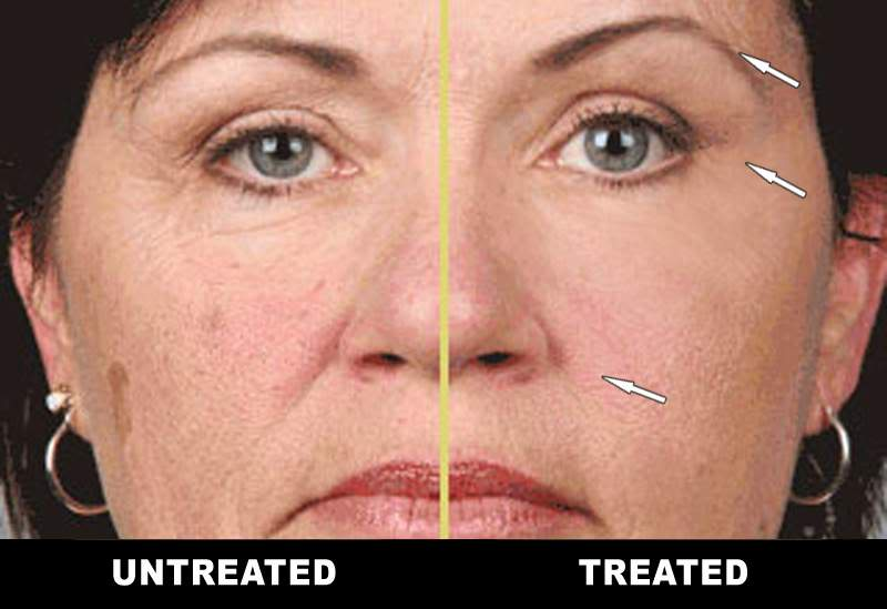 Before and After Microcurrent Facial Toning at American Face & Body Clinic